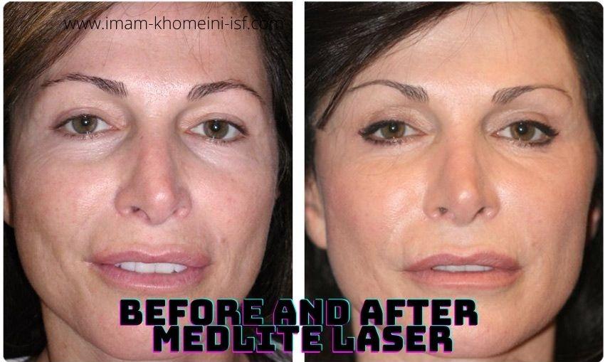 Before and After MedLite Laser