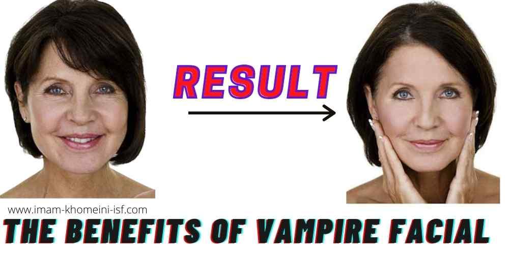 The benefits of Vampire Facial